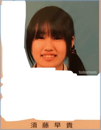 【顔画像】須藤早貴は歯茎を整形で小学生時代の素顔から激変?!ドンファン元妻